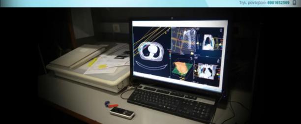 Η Τεχνική VMAT στην Αντιμετώπιση Εκτεταμένου Οπισθοπεριτοναϊκού Όγκου